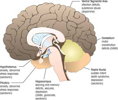 Regions of the Brain that can be Affected in FASD