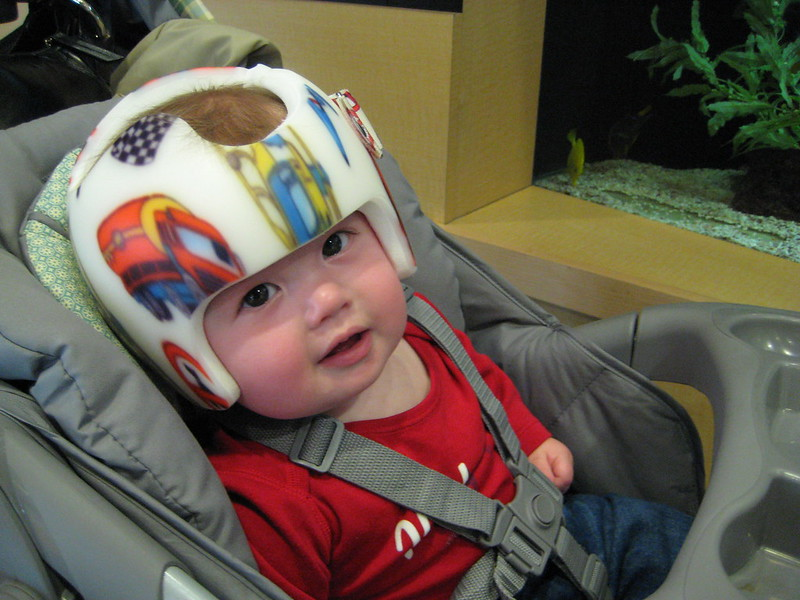Infant in car seat with a helmet of type to manage head shape